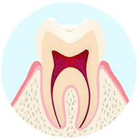 最初期の虫歯