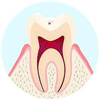 表面の虫歯