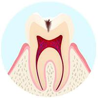 内面の虫歯