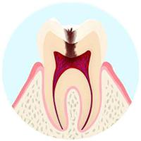 歯の神経まで達している虫歯