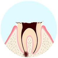 歯の根元だけ残った虫歯